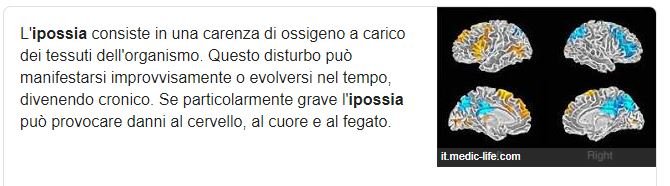 ipossia